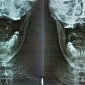 Upper cervical adjustment changes head position